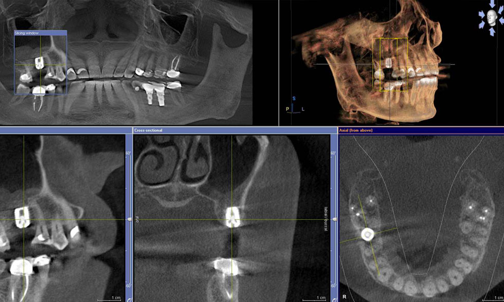 3D scan Implant Planning