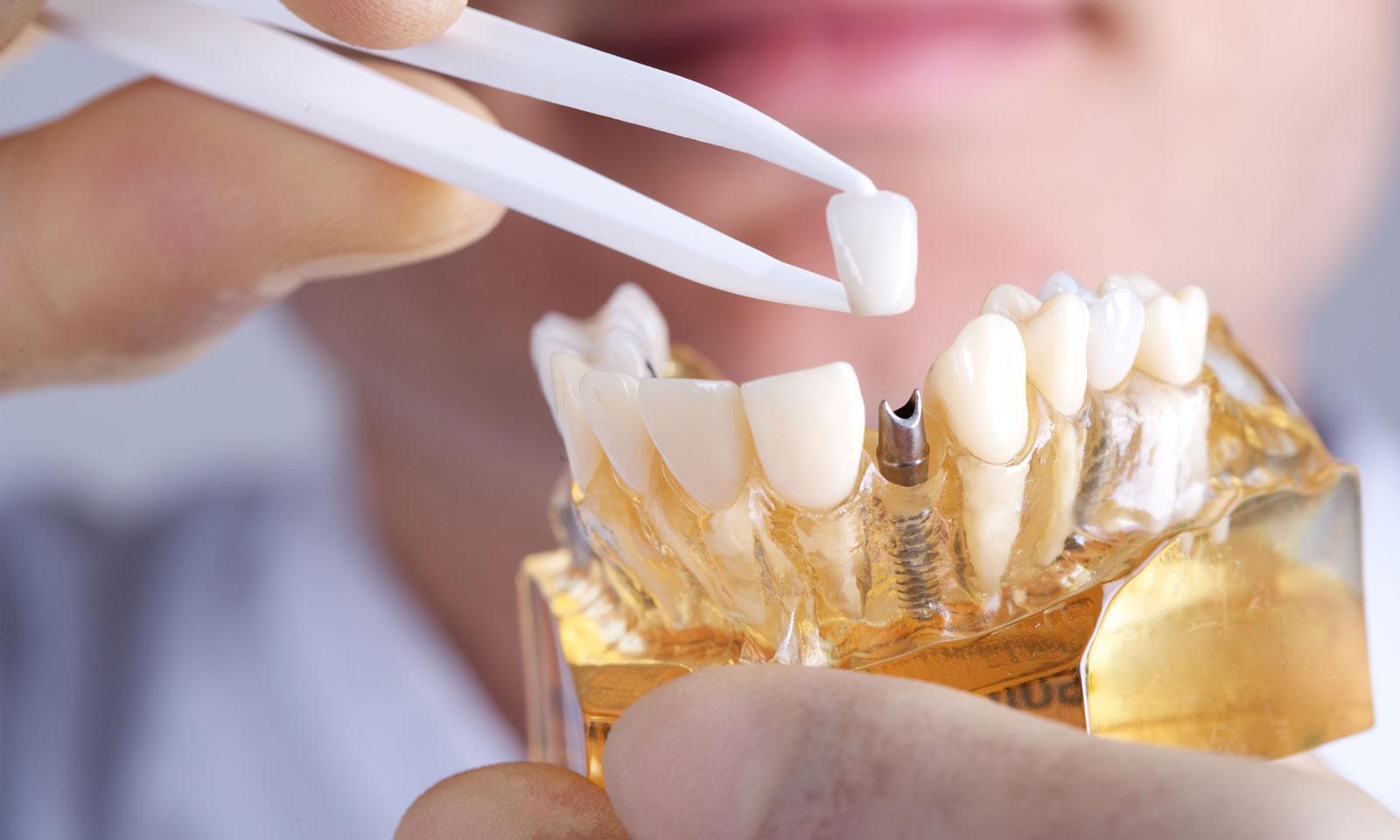Prosthetics for Missing Teeth