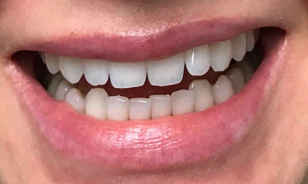 Rebuild broken teeth with Alveo Dental Clinic in Gurgaon