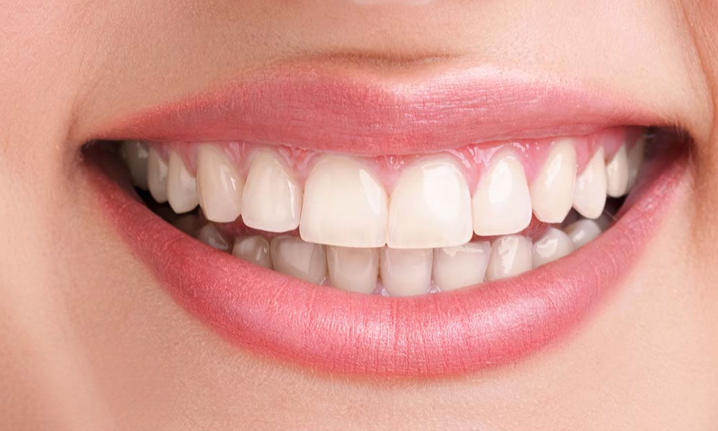 Best Cosmetic Dentistry in Gurgaon