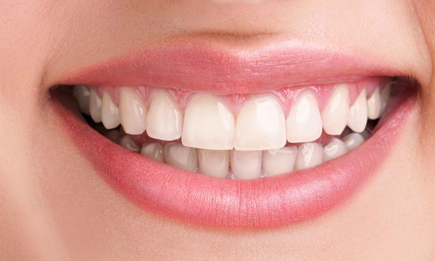 Best Cosmetic Dentistry in Gurgaon