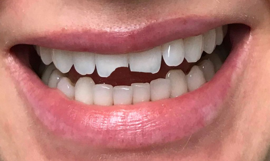 Repair/Rebuild Broken Teeth