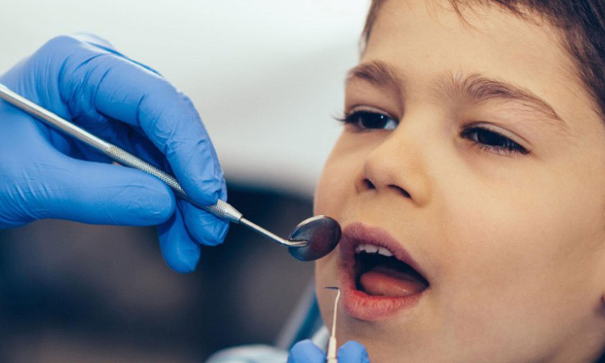 Fillings - Kids Dentist in Gurgaon