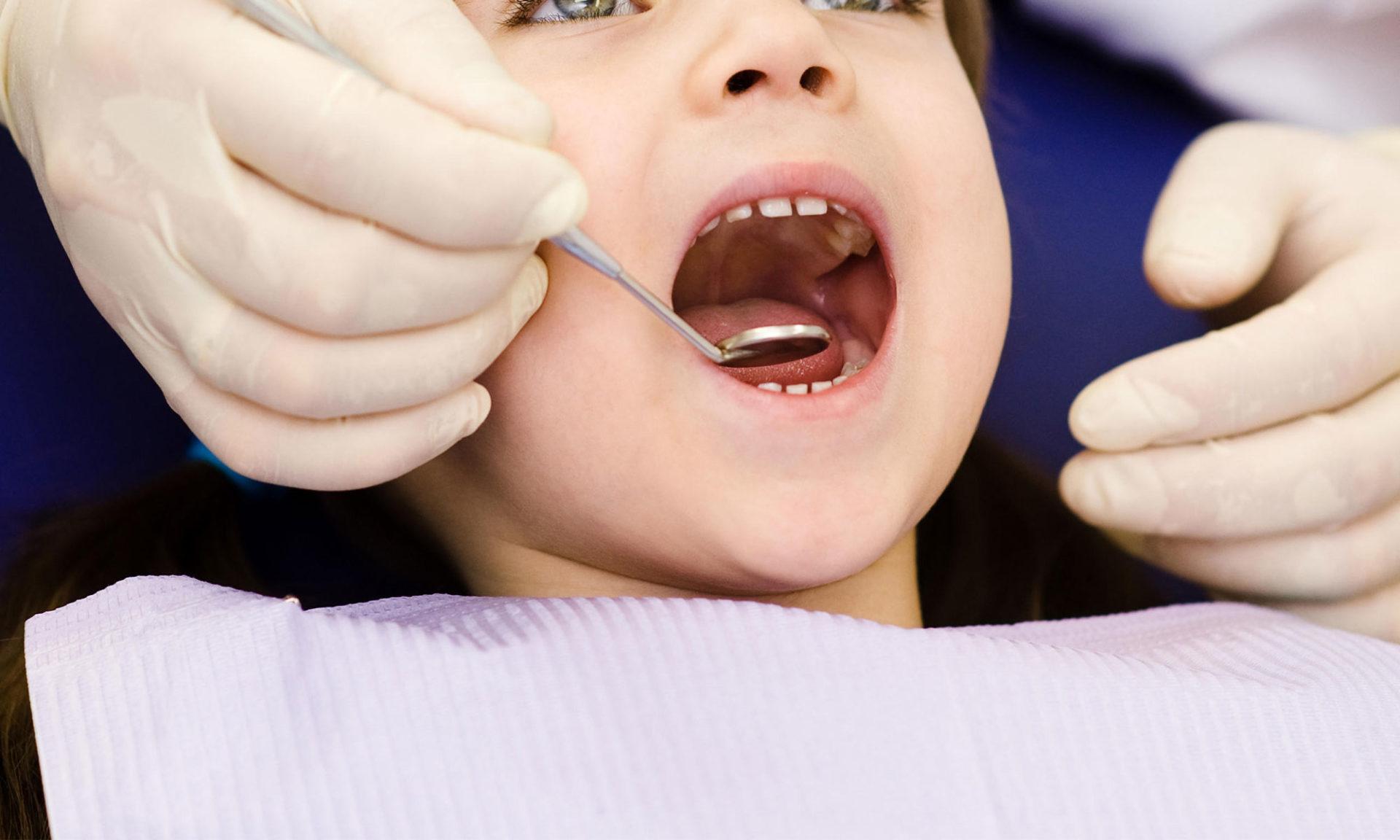 Sealants - Pediatric Dentist in Gurgaon